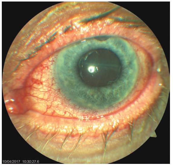 Objektivní nález levého oka 7. den po trabekulektomii (TE) OL