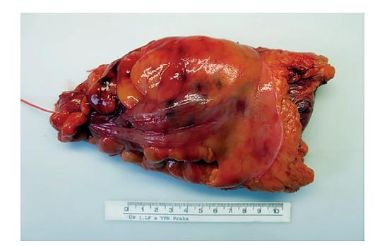 Fotodokumentace resekátu rekta pořízená patologem<br> Fig. 2: Photodocumentation of the resected rectal specimen by pathologist