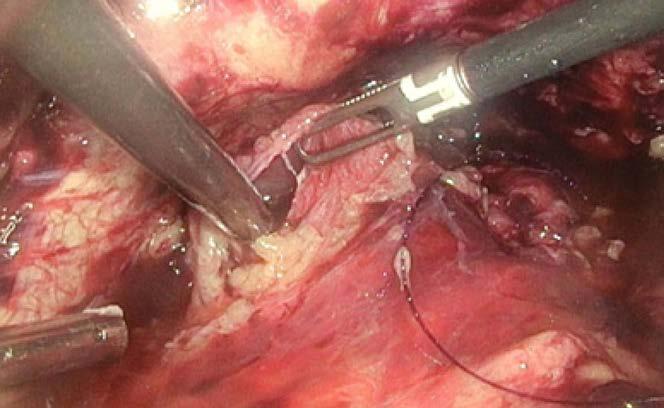 Laparoskopie – na levé straně další ruptura močového měchýře<br> Fig. 6. Laparoscopy – On left side of the urinary bladder, the next rupture.