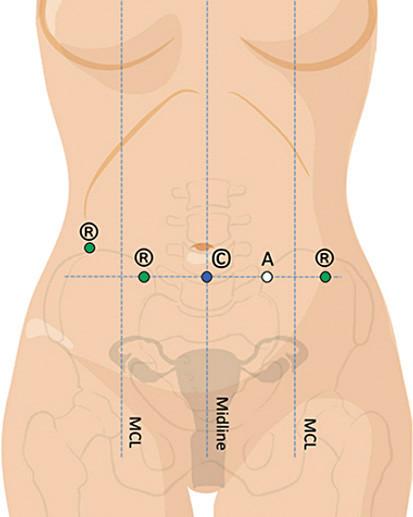 Duální dokování – rozmístění vstupů do břišní dutiny při využití jednoho vstupu pro optiku (upraveno podle Intuitive Surgical, H. Falconer)