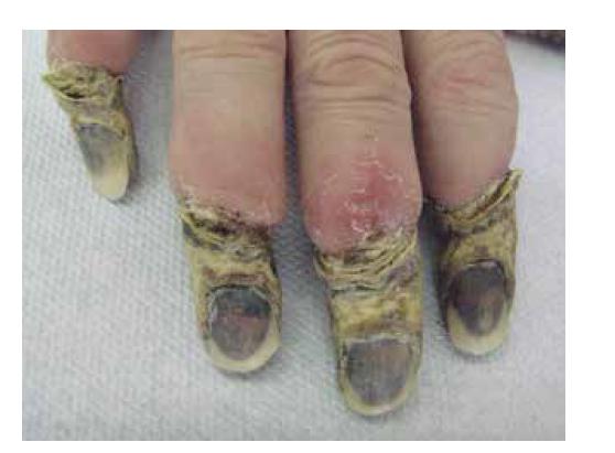 Suchá gangréna distálních článků rukou u pacientky s kryoglobulinemickou vaskulitidou