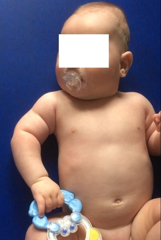 Věk 4 měsíce, na obrázku je patrná zejména hypotrofie musculus deltoideus a pažních svalů. <br>