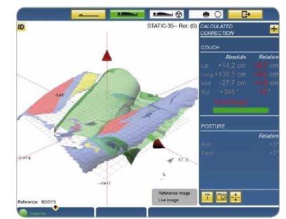Systém Catalyst polohování před ozařováním levé dolní končetiny.