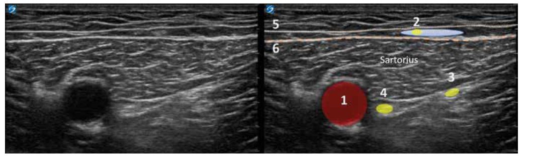 Nativní a kolorovaný ultrazvukový obraz v trigonum femorale. 1. arterie femoralis, 2. NCFIM, modrou barvou naznačeno lokální anestetikum, 3. n. vastus medialis, 4. nervus femoralis, 5. povrchní fascie stehna, 6. fascia lata