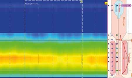 Klidový tonus vnitřního análního svěrače. Měření klidového tonu análního svěrače v relaxované poloze pacienta