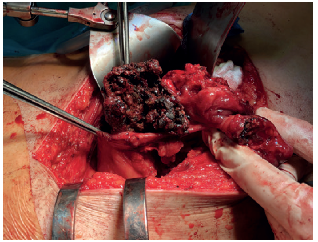 Fig. 4: An intraoperative image of the mesh being extracted from the perforated sigmoid colon
