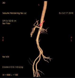 CT angiografie s nálezem stenózy kmene TC u prezentovaného pacienta (označeno šipkou)<br> Fig. 2: CT angiography with the finding of TC stenosis in  the presented patient (marked by the arrow)
