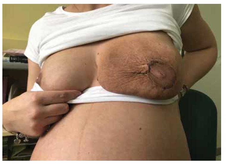 Pooperační hojení rány.<br> Fig. 4. Postoperative wound healing.