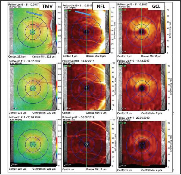 Vyšetření makuly pomocí optické koherenční tomografi e u pacientky s probíhající optickou neuritidou u neuromyelitis optica a onemocnění jejího širšího spektra. Barevná legenda tloušťky vyšetřované vrstvy je ve sloupci vpravo u každé mapy. V prvním sloupci jsou výsledky měření TMV, v prostředním sloupci je tloušťka vrstvy NFL a v pravém sloupci je tloušťka vrstvy GCL. U prvního vyšetření z 31. 10. 2017 (v prvním řádku), které bylo provedeno krátce po počátku příznaků optické neuritidy, pozorujeme známky peripapilárního edému zasahujícího do NFL a TMV (modré šipky). Vyšetření provedené s odstupem 6 týdnů (výsledky ve druhém řádku) již ukazuje mírné tenčení vrstvy GCL a ústup peripapilárního edému. Ve třetím řádku je vyšetření provedené s odstupem od optické neuritidy (v červnu 2019), kde můžeme pozorovat ztrátu NFL a GCL ve všech segmentech makuly a s tím spojené snížení TMV.<br> Fig. 3. Optical coherence tomography assessment of macula in a patient with optic neuritis in neuromyelitis optica spectrum disorders. The thickness of retinal layers is color-coded to the right of each map. The fi rst column shows the measurement of TMV, the middle column shows the thickness of NFL, and the thickness of GCL is in the column on the right. The fi rst assessment was performed in October 2017 shortly after the fi rst symptoms of optic neuritis and reveals peripapillary edema (blue arrows) aff ecting the NFL and TMV (results in the fi rst row). The assessment performed six weeks later shows thinning of GCL and decrease of peripapillary edema (results in the second row). The fi nal assessment shown was performed in June 2019 and shows loss of NFL and GCL in all macular segments and related decrease of TMV.