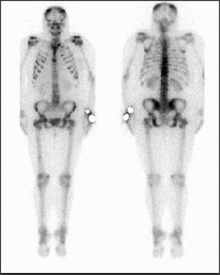 Vyšetrenie zobrazovacími metódami: scintigrafia – skeletálne metastázy. Archív Onkologického ústavu sv. Alžbety, s.r.o., Bratislava
