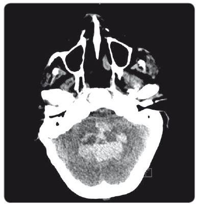 Expanzivní krvácení s utlačením mozkového kmene.