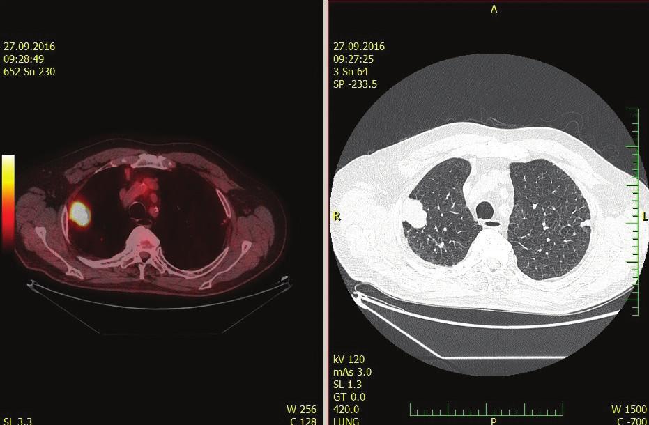 Suspektní metastáza/karcinom na PET/CT trupu<br> Fig. 4: Suspected meta/carcinoma in PET/CT of the trunk