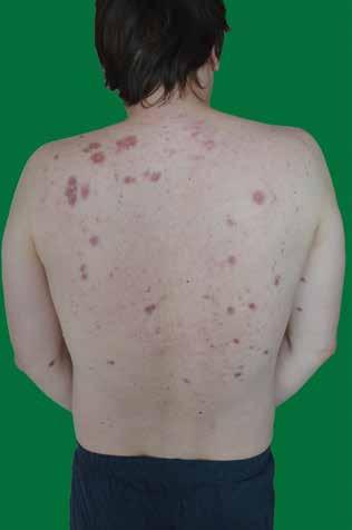 Mnohočetné uzlovité infiltráty hnědočerveného zbarvení