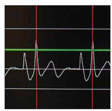 Intravazální EKG, dosažení maximální amplitudy vlny P při kavoatriální poloze konce katetru.