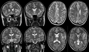Near-total resolution of the arachnoid cyst on a 6-month follow-up MRI. Obr. 4. Významná regrese arachnoideální cysty zobrazené na kontrolní MR po 6 měsících.