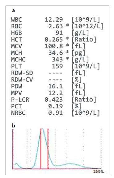 (a) Hodnoty krevního obrazu z analyzátoru Sysmex XN-10 v případě, kdy analyzátor vydal hlášení o přítomnosti dimorfní populace RBC; hodnoty červeného krevního obrazu jsou označeny hvězdičkou * – znakem snížené spolehlivosti. (b) Histogram RBC – analyzátor vydal hlášení o abnormální distribuci RBC a dimorfní populaci erytrocytů; červenými čarami jsou vyznačeny referenční meze MCV (zdroj: laboratoř IV. IHK).<br> RBC – erytrocyty, MCV – střední objem erytrocytů