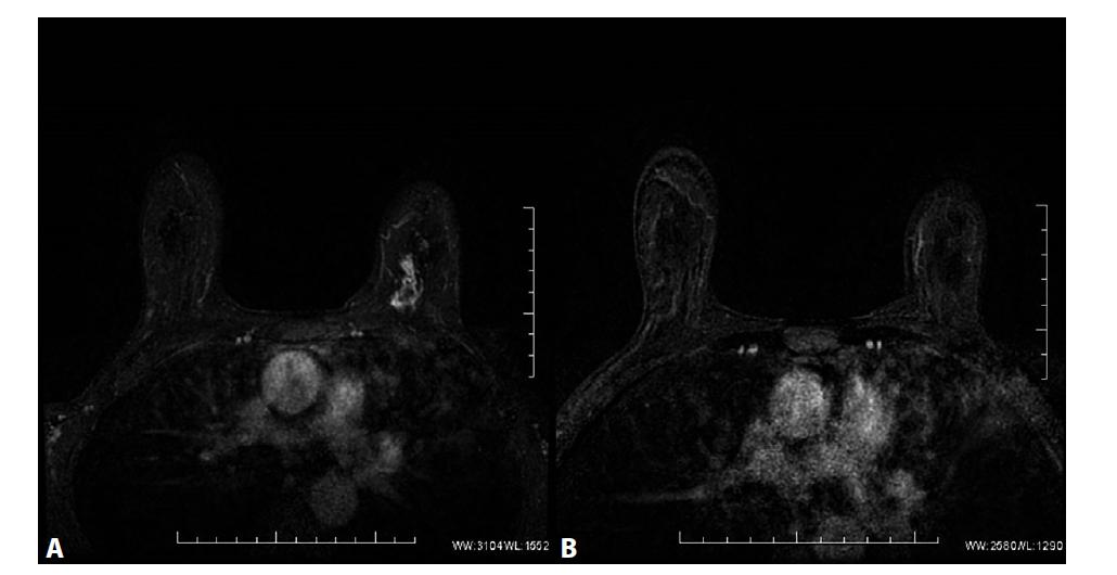 MRM. T1FS ax, kontrastní studie VIBRANT, 2. postkontrastní sekvence, subtrakce<br> A) Před NCHT. Patologické sycení ložiskového typu v HVK l. sin odpovídající karcinomu. V centrálních oddílech tumoru výpadek sycení odpovídající nekrotickým změnám ca. B) Po NCHT. Absence sycení po NCHT, bez průkazu rezidua tumoru, rCR.<br> Fig. 5: MRI, T1FS ax, contrast study VIBRANT, 2. postcontrast sequence, subtraction<br> A) Before NCT. Pathological mass enhancement in the UIQ of left breast corresponding to carcinoma. Absence of enhancement in the central part of the tumour corresponds to necrotic changes. B) After NCT. Absence of enhancement after NCT, without detection of residual tumour, rCR.