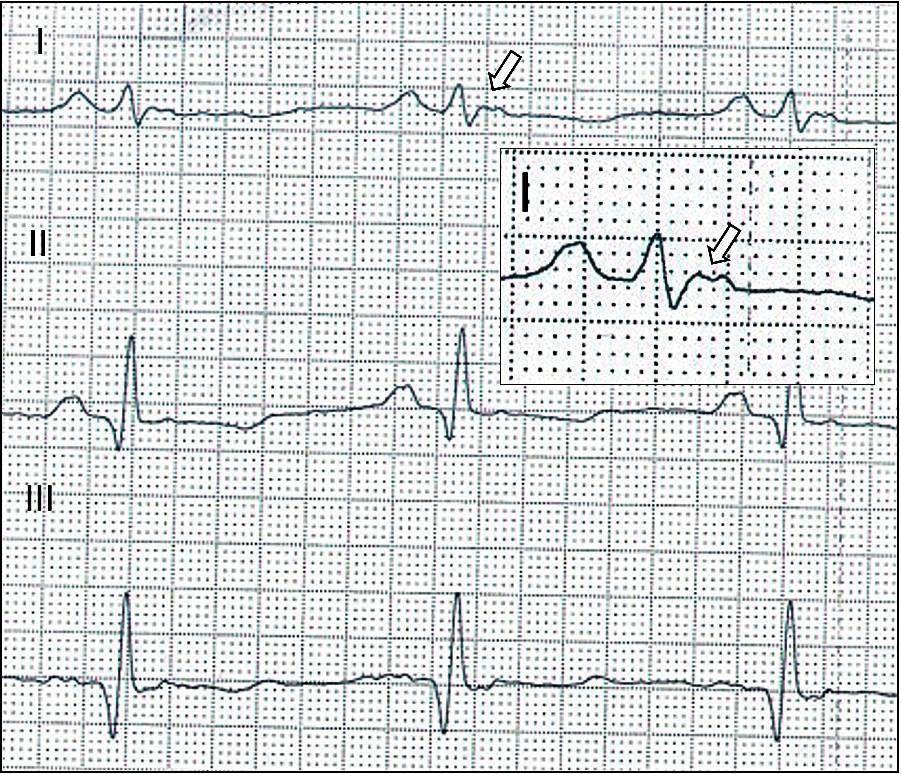 Arytmogenní kardiomyopatie – EKG. Vlna Epsilon odrážející opožděnou aktivaci pravé komory ve standardním svodu I(šipka).