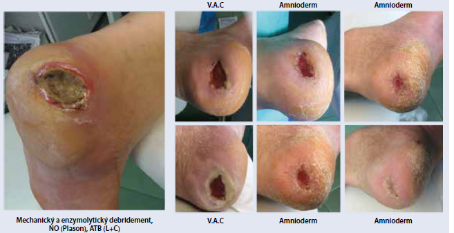 Obr. 2b   Liečba hojivou membránou Amnioderm. Stimulácia epitelizácie neuroischemickej ulcerácie