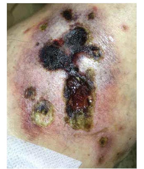 Pravé koleno bolestivý nodulus s ulcerací a nekrózou