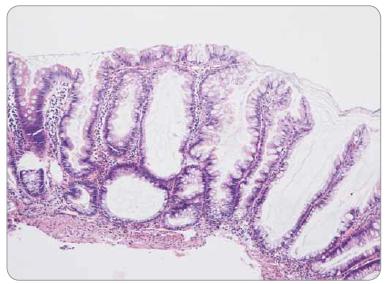 Sesilní serrated adenom/polyp tračníku – pilovité uspořádání epitelu v celé délce bazálně dilatovaných krypt.
