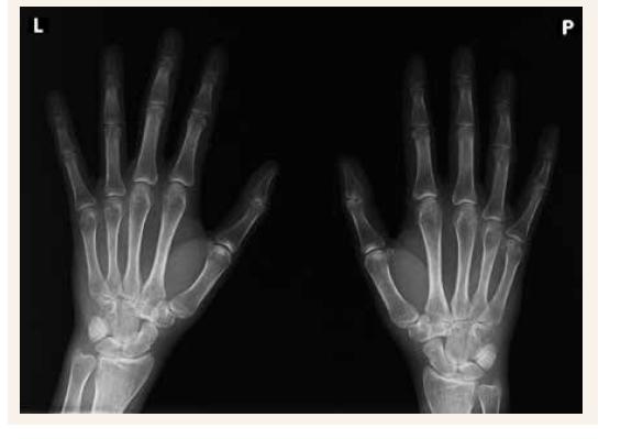 Nativní RTG - levá a pravá ruka bez postižení tepen mediokalcinózou