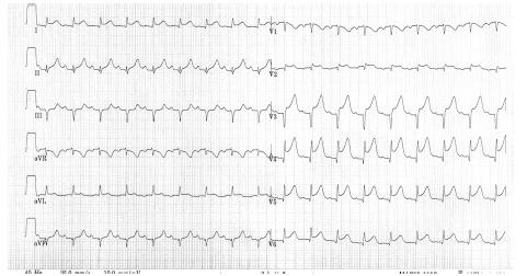 EKG natočené přímo na operačním sále