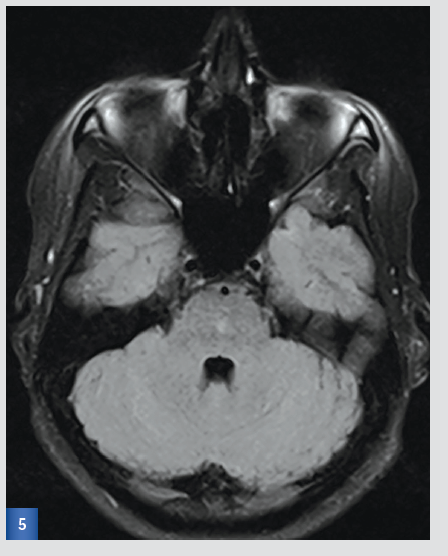 Kontrolní MRI po 3 měsících:FLAIR
