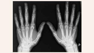 1 | Cystické projasnění v oblasti hlavičky 2. metakarpu vlevo