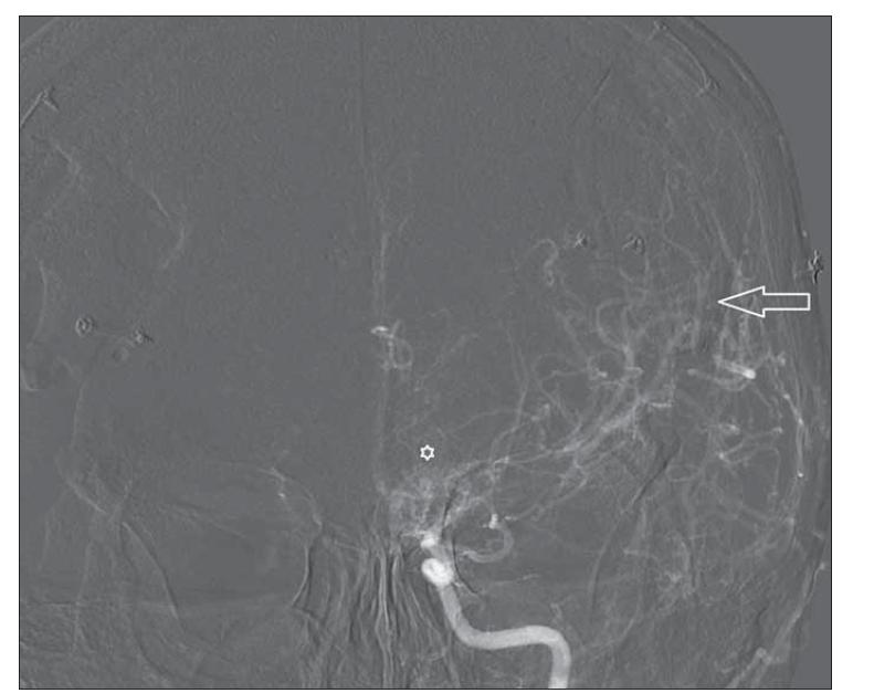 DSA levé karotidy po revaskularizaci – předozadní projekce. Šipka ukazuje bohatou cévní kresbu po kombinovaném (přímém a nepřímém) chirurgickém výkonu. Hvězdička zobrazuje dosud přetrvávající bazální kolaterály.<br> Fig. 8. Left carotid DSA after revascularization – anterior-posterior projection. Arrow shows rich vascularization after combined (direct and indirect) surgery. Asterix depicts remaining basal collaterals.