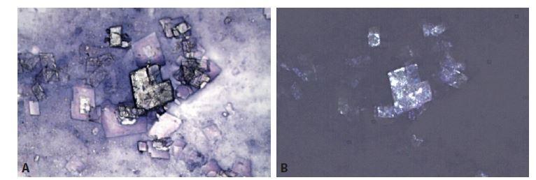 """Cholesterolové krystaly – známka starého krvácení. Ve výpotcích mají charakteristický vzhled """"skleněných tabulek"""", odlišný od vřetenitých a jehlicovitých tvarů ve tkáni.<br> A: MGG, 400x. B: Totéž pole v polarizovaném světle. Optická aktivita krystalů cholesterolu."""