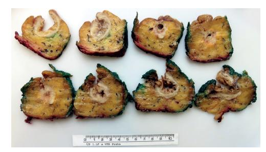 Preparát rekta s karcinomem prokrájený patologem<br> Fig. 4: Specimen of rectum with tumor sliced by pathologist