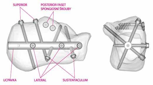 Schéma umístění hřebu (Operační technika C-Nail – www.c-nail.eu)