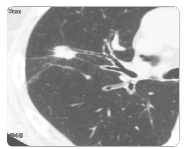 Výpočetní tomografie – sken karcinomu plic.