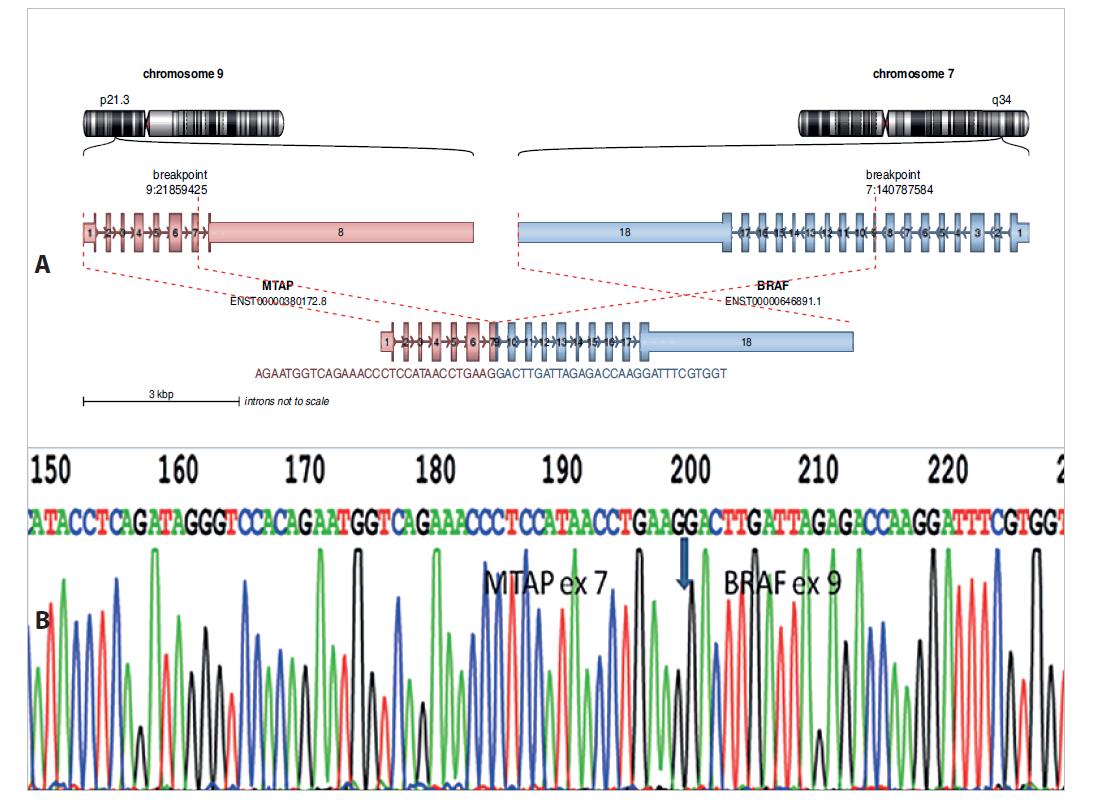 A: Nově diagnostikovaný fúzní gen MTAP-BRAF u dětského pacienta s vřetenobuněčným sarkomem. Analýza pomocí Arriba software https://github.com/suhrig/arriba. B: Sekvenační analýza fúzního produktu MTAP-BRAF pomocí Sangerovy sekvence.