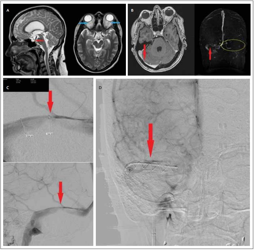 (A) Vstupní MR v T2-váženém obraze (sagitální, axiální). Červená šipka označuje parciálně prázdné turecké sedlo. Modré šipky ukazují na dilataci pochev obou optických nervů. Na axiálním snímku je také patrna protruze papily na pravém oku;<br> (B) Vyšetření MR s kontrastní látkou a MRA. Červené šipky označují místo stenózy. Žlutě je vyznačena oblast aplastického levého sinus transversus;<br> (C) DSA zobrazující takřka 80% stenózu pravého sinus transversus. Červené šipky označují místo stenózy;<br> (D) Snímek z DSA ihned po implantaci stentu. Červená šipka ukazuje na místo předchozí stenózy.<br> Fig. 1. (A) Initial T2-weighted MRI scan (sagittal, axial). The red arrow indicates a partially empty sella. Blue arrows indicate dilatation of the sheaths of both optic nerves. The axial image also shows a protrusion of the papilla on the right eye;<br> (B) MRI scan with contrast and MRA. Red arrows indicate the site of stenosis. The area of aplastic left transverse sinus is highlighted in yellow;<br> (C) DSA showing almost 80% stenosis of right transverse sinus. Red arrows indicate the site of stenosis;<br> (D) DSA image immediately after stent implantation. The red arrow points to the location of the previous stenosis
