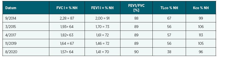 Funkční vyšetření plic (FVC, FEV1, FEV1/FVC) + plicní difuze (TLco, Kco)