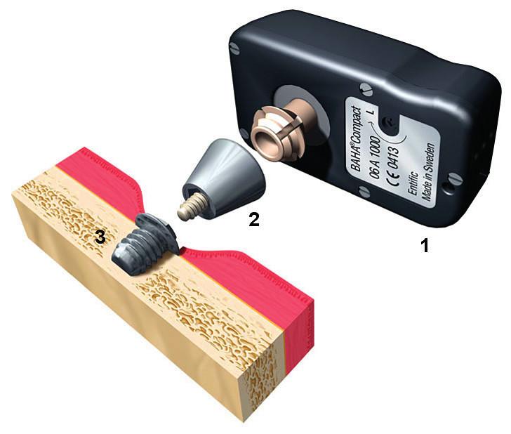 Původní implantát BAHA vyvinutý společností Entific. Legenda: 1 – zvukový procesor, 2 – abutment, patka, 3 – oseointegrovaný titanový implantát (Zdroj: Cochlear, Sydney, Austrálie.)