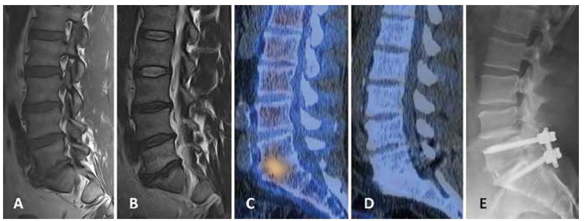 Pacient č. 7 s mírnou degenerací disků L3-5 a těžkou degenerací L5/S1 s Modicovými změnami typu 1 na MR v T1 vážených (A) a T2 vážených (B) obrazech. SPECT/CT vyšetření ukazuje zvýšenou aktivitu v prostoru L5/S1 (C). Kontrolní SPECT/ CT vyšetření 2 roky po stabilizaci L5/S1 s negativním nálezem (D), RTG ukazuje dobré postavení instrumentária (E)<br> Fig. 2. Patient No. 7 with slight L3-5 degeneration and severe L5/S1 degeneration with Modic Type 1 changes on MRI on T1-weighted (A) and T2-weighted (B) images. SPECT/CT examination shows increased activity in the L5/S1 level (C). Control SPECT/CT scan 2 years after L5/S1 stabilization with negative finding (D); X-ray shows good position of instrumentation (E).