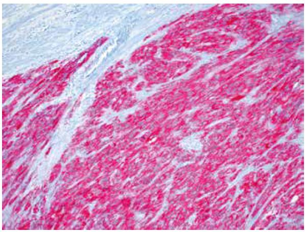 Silná difúzní cytoplasmatická pozitivita ALK (IHC, 200x).