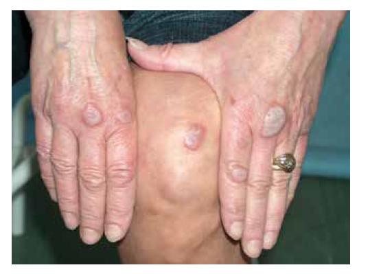 Lividní infiltrované noduly nad klouby rukou a nad kolenem, postižení u pacientky s erythema elevatum diutinum