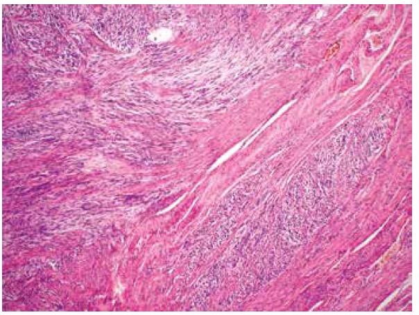 Invaze fascikulárně uspořádaného tumoru mezi snopce okolního myometria (HE, 100x).