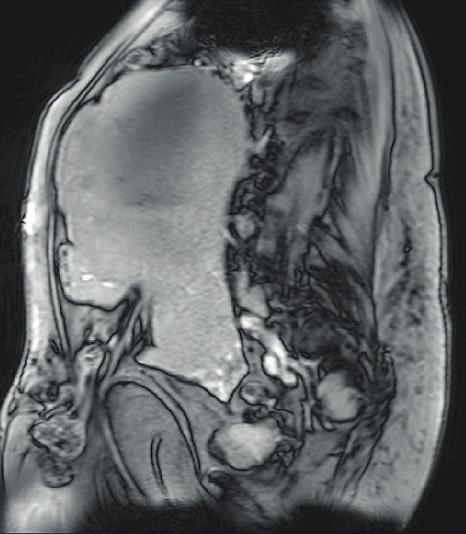 MR pánve a břicha