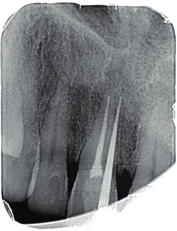 Fistulografie horního frotálního úseku. Zavedený gutaperčový čep ve fistule směřuje meziálně od apexu zubu 11 do místa periapikálního projasnění