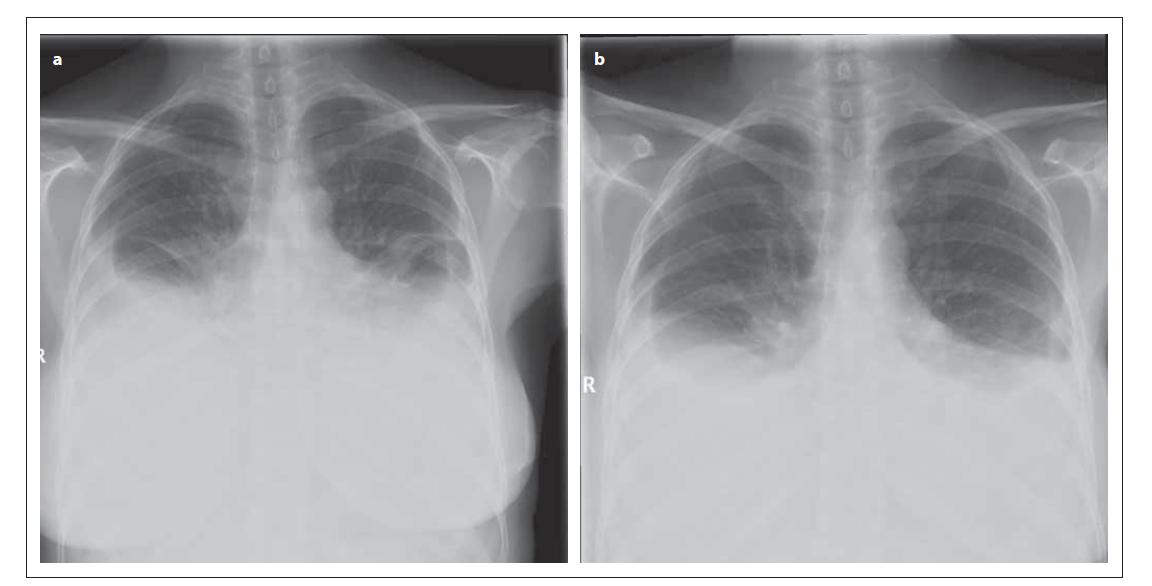 Rentgenový snímek hrudníku pacientky (a) 9. 2. 2012 (předozadní projekce) – je patný oboustranný fl uidothorax ventrálně po 3. žebro; srdeční stín je nehodnotitelný; mediastinum není rozšířeno. (b) 15. 2. 2012 (předozadní projekce) – je patrná regrese oboustranného fl uidothoraxu, dosahuje ventrálně po 4. žebro; srdeční stín není hodnotitelný; mediastinum není rozšířeno.