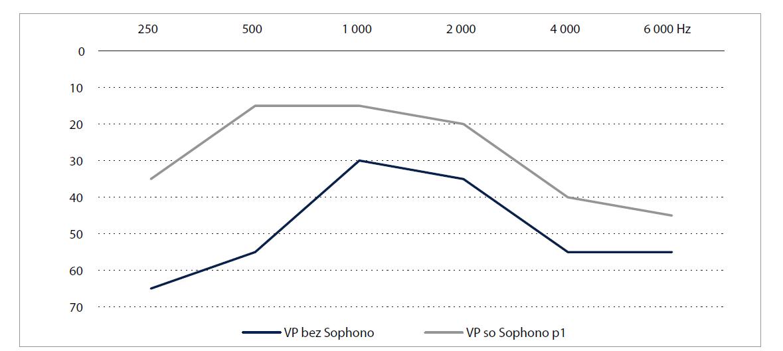 Rozdiel v prahovej tónovej audiometrii vo voľnom poli bez a so Sophono u pacienta 1 (p1 = program 1, ktorý bol preferovaný pacientom).<br> Graph 3. Pure tone audiometry in free field in unaided and aided (Sophono) conditions in patient 1 (p1 = program 1 preferred by the patient).