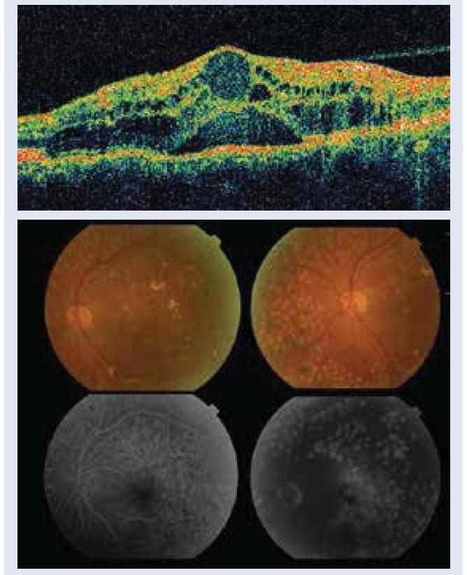 Diabetický edém makuly: 1.1 cystoidné zmeny v makule, CST 421 μm, s odlúčením neurosenzória a odlučujúcou sa zadnou kôrou sklovca (Stratus OCT, Zeiss, USA). 1.2 na fluoresceínová angiografia rozšírená foveolárna avaskulárna zóna a presakovanie v neskorých fázach. Snímky – archív autorky.