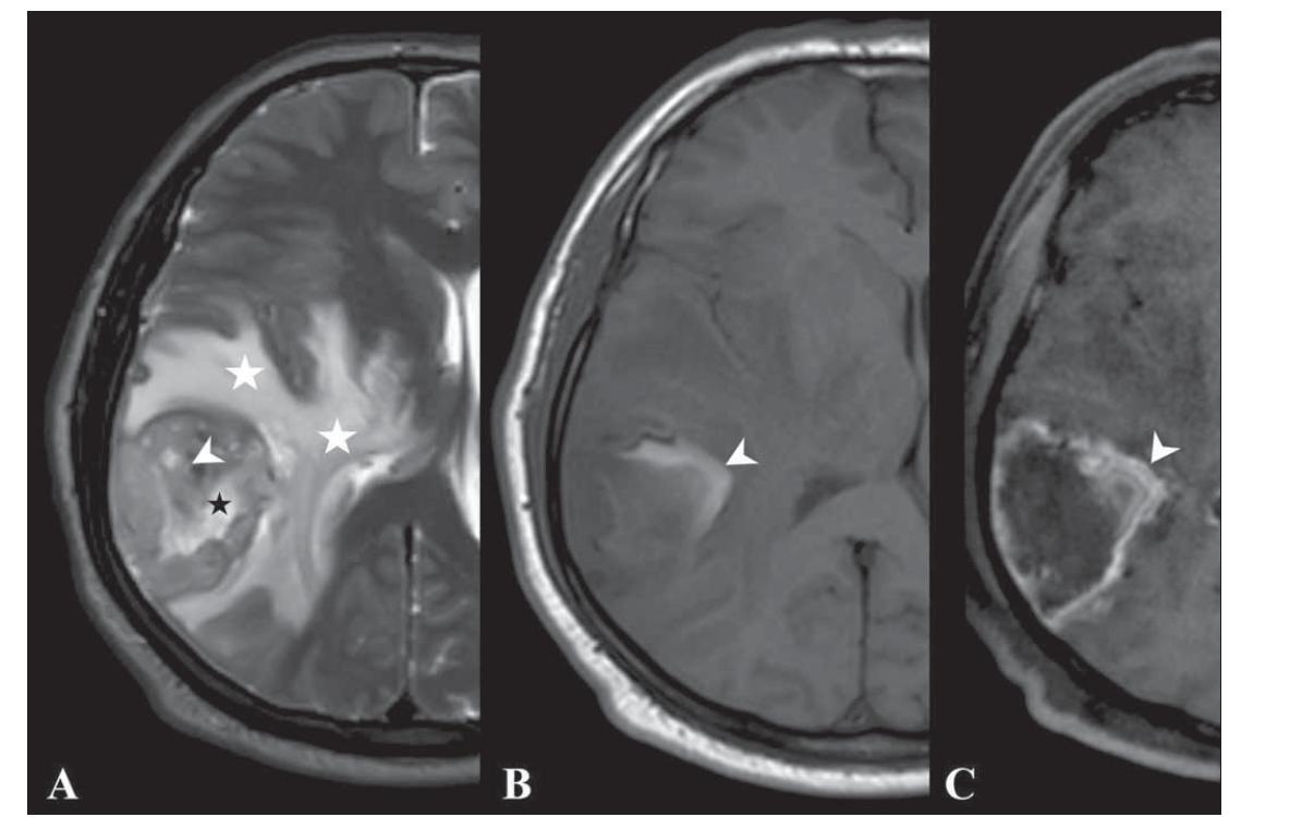 Fig. 1. T2-weighted (A), T1-weighted (B) and contrast-enhanced T1-weighted (C) images of a 55-year-old male patient with gliosarcoma show width necrosis (white arrow head, A), minimal cystic area (black star, A), width oedema causing midline shift (white stars, A), haemor rhage (white arrow head, B), and peripheral contrast enhancement (white arrow head, C).<br> Obr. 1. Vážené snímky T2 (A), T1 (B) a postkontrastní T1 se zvýšeným kontrastem (C) 55letého pacienta mužského pohlaví s GSM ukazují šíři nekrózy (vršek bílé šipky, A), minimální cystickou oblast (černá hvězdička, A) s edémem způsobujícím přesun střední čáry (bílé hvězdičky, A), hemoragií (vršek bílé šipky, B) a periferní zvýšení kontrastu (vršek bílé šipky, C).