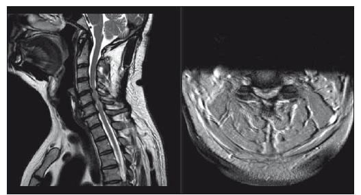 Pacient s míšní kompresí bez klinických známek myelopatie či radikulopatie, dle mJOA 18; pacient poučen o možných rizicích a klinicky sledován. T2-vážené sekvence, vlevo sagitální řez, vpravo axiální řez v úrovni maximální komprese. mJOA – modifikovaná škála Japonské ortopedické asociace<br> Fig. 4. Patient with cervical spine compression with no signs of myelopathy or radiculopathy, mJOA 18; patient was educated about possible risks and is followed clinically. T2-weighted sagittal scan on the left side, axial scan at the level of maximal compression on the right side. mJOA – the modified Japanese Orthopaedic Association scale