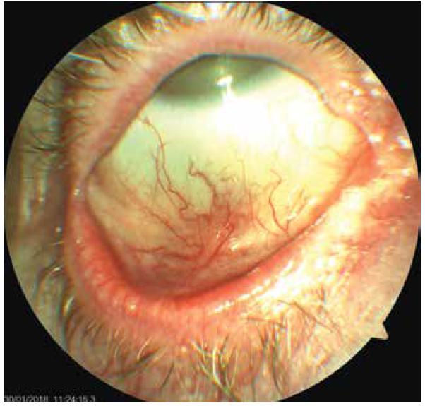 Pravé oko pacientky- jizevnatá blefarokonjunktivitida, bělavé plaky na okrajích víček, později vzniklá symblefara